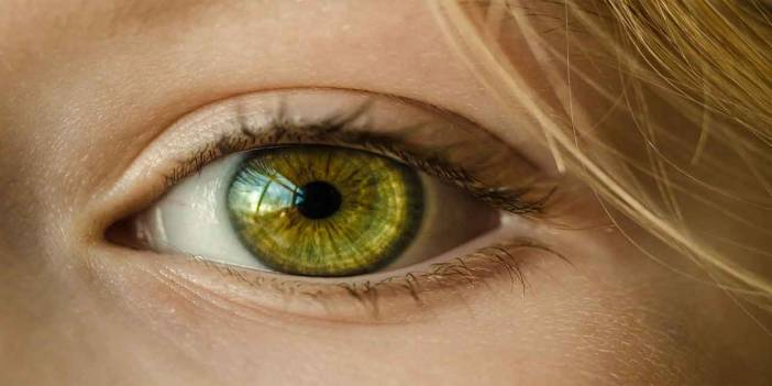 Hangisi göz rengi olan elanın tanımıdır